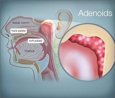 Remedios caseros contra la Adenoiditis