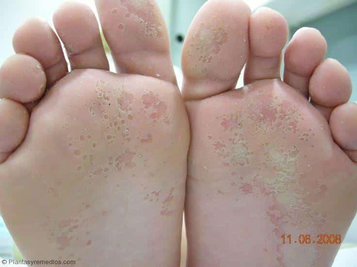 El tratamiento del hongo de la pierna por los medios públicos