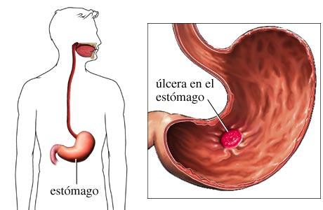 Tratamientos caseros contra la ulcera estomacal o duodenal