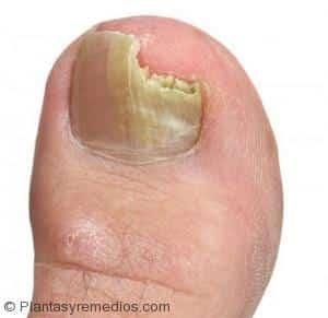 Del taladro para el tratamiento del hongo de las uñas