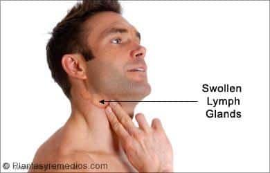 Cmo curar el dolor de garganta casi instantneamente