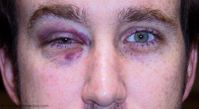 La hemorragia del ojo el hinchazón