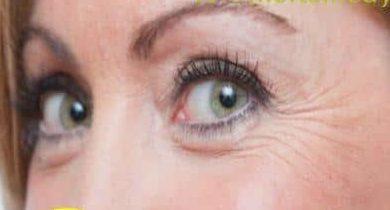 El ungüento de la hemorroide los hinchazones de los ojo