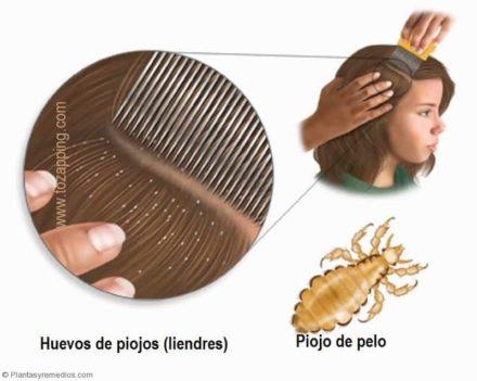 El medio para el ablandamiento de los cabello sobre la persona