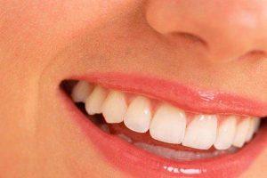 11 alimentos para mejorar la salud de los dientes
