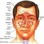 13 remedios caseros para la sinusitis