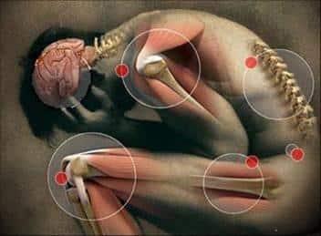 Remedios caseros contra el reumatismo