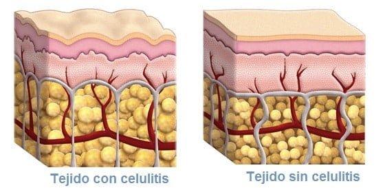 Tejido con celulitis