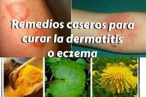 Remedios caseros para curar la dermatitis