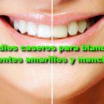 34 remedios caseros para blanquear los dientes