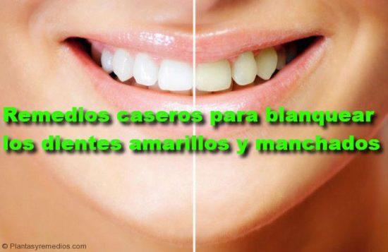 Remedios caseros y naturales para blanquear los dientes