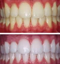 dientes amarillos remedios caseros