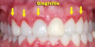 Gingivitis : síntomas , prevención, remedios
