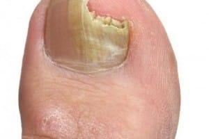 remedios caseros hongo uña del pie