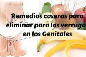 Remedios caseros para eliminar para las verrugas en los Genitales