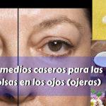 13 Remedios caseros para eliminar las bolsas en los ojos