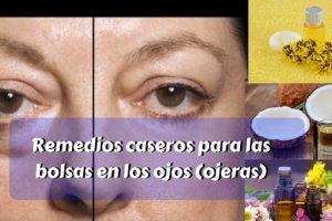 Remedios caseros para las bolsas en los ojos (ojeras)