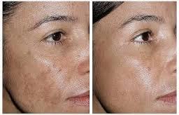 remedios caseros para aclarar el rostro