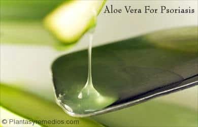 Aloe vera para la psoriasis