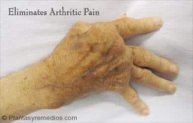 Uvas para tratar la artritis