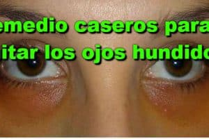 Remedios caseros para los ojos hundidos