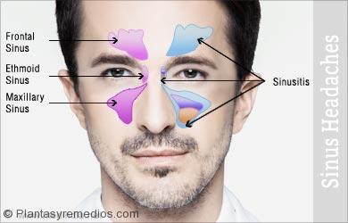Remedios caseros para los dolores de cabeza sinusal