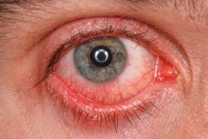 remedios caseros ojo rojo