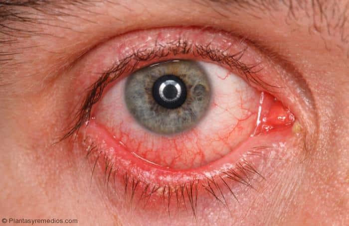 Remedios caseros para deshacerse de los ojos rojos