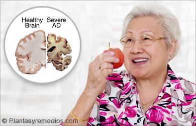 Beneficios para la salud de las manzanas: Alzheimer