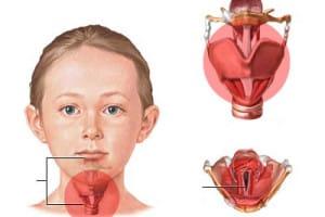 remedios caseros laringitis