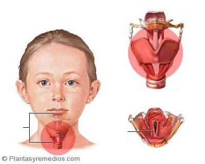 26 Fáciles Remedios caseros para tratar la laringitis