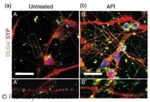 Incluir hierbas en la dieta impulsa la función cerebral