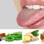Remedios caseros para la boca seca ( xerostomía)