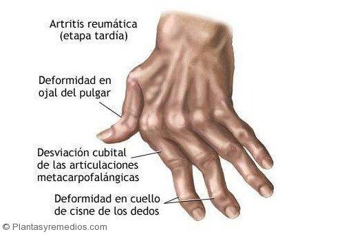 Recetas caseras para curar la artritis reumatoide