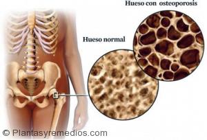 Remolacha es bueno para tratar la osteoporosis