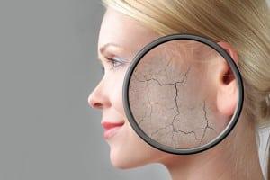 Remedios ayurvedicos para los problemas de pigmentación en la piel