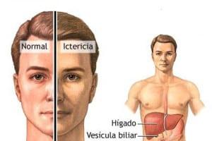 Remedios caseros para aliviar los síntomas de ictericia hepatica o hepatitis