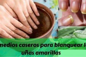 Remedios caseros para blanquear las uñas amarillas