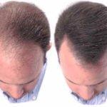 Vitaminas para el engrosamiento del cabello