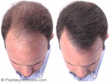Vitaminas recomendadas para la caida del cabello