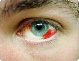 Remedios con plantas para los ojos inyectados de sangre
