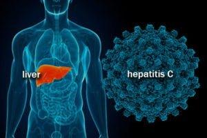 Remedios con plantas para la hepatitis C