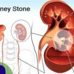 Remedios con plantas para los cálculos renales