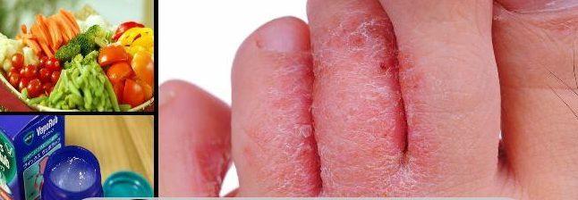 El hongo sobre las uñas el tratamiento en simferopole