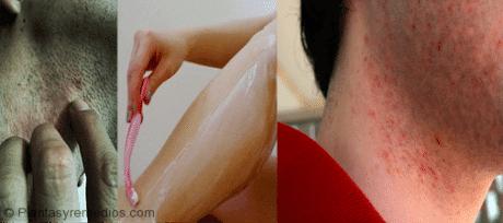Tratamiento para la quemadura de afeitar vaginal