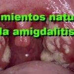 26 Tratamientos caseros para la amigdalitis