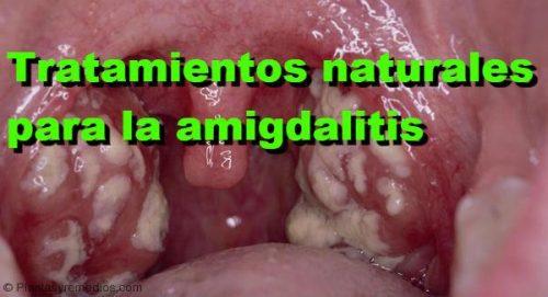 medicina casera para amigdalas inflamadas