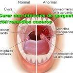 12 remedios caseros para la infección en la garganta