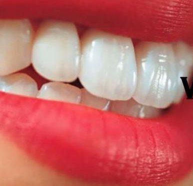 el bicarbonato de sodio sirve para blanquear los dientes