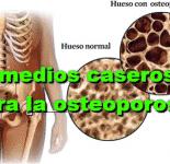 14 Remedios caseros para la osteoporosis